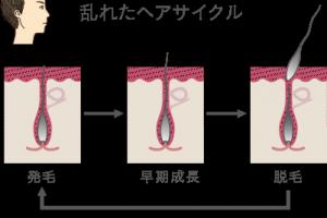 髪の成長とヘアサイクル