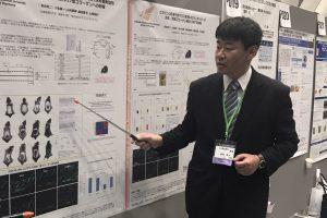 ビタミンC塗布で皮膚中の17型コラーゲン量が多く観察/日本抗加齢医学会総会発表